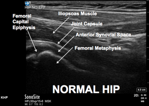 ACEP // Tips & Tricks: Ultrasound in the Diagnosis of a Pediatric ...
